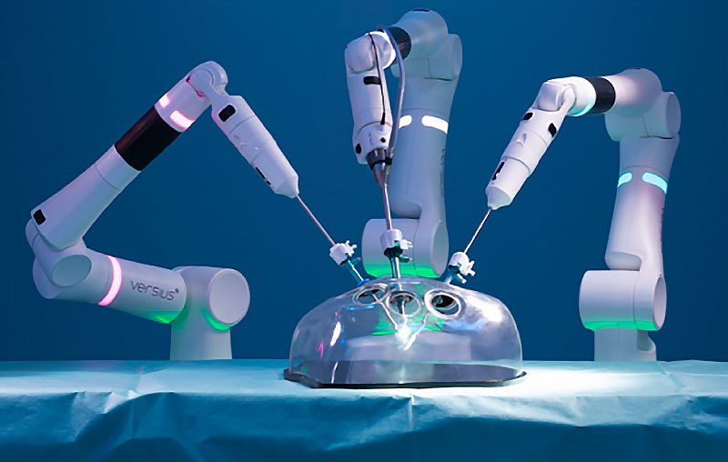 Photo of Versius, the next-generation surgical robot